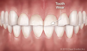 tooth-wear-1-300x175