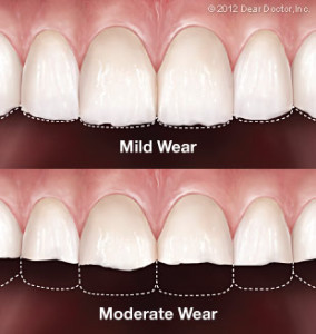 tooth-wear