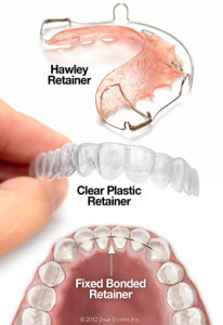types-of-orthodontic-retainers-206x300