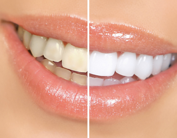 Teeth Whitening At Home Can Prove Disastrous
