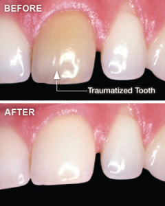 whitening-traumatized-teeth