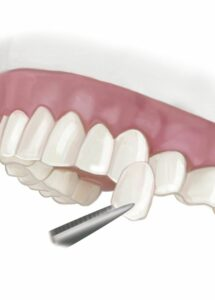 veneers orthodontics