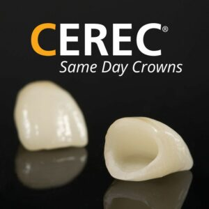 cerec same day crowns