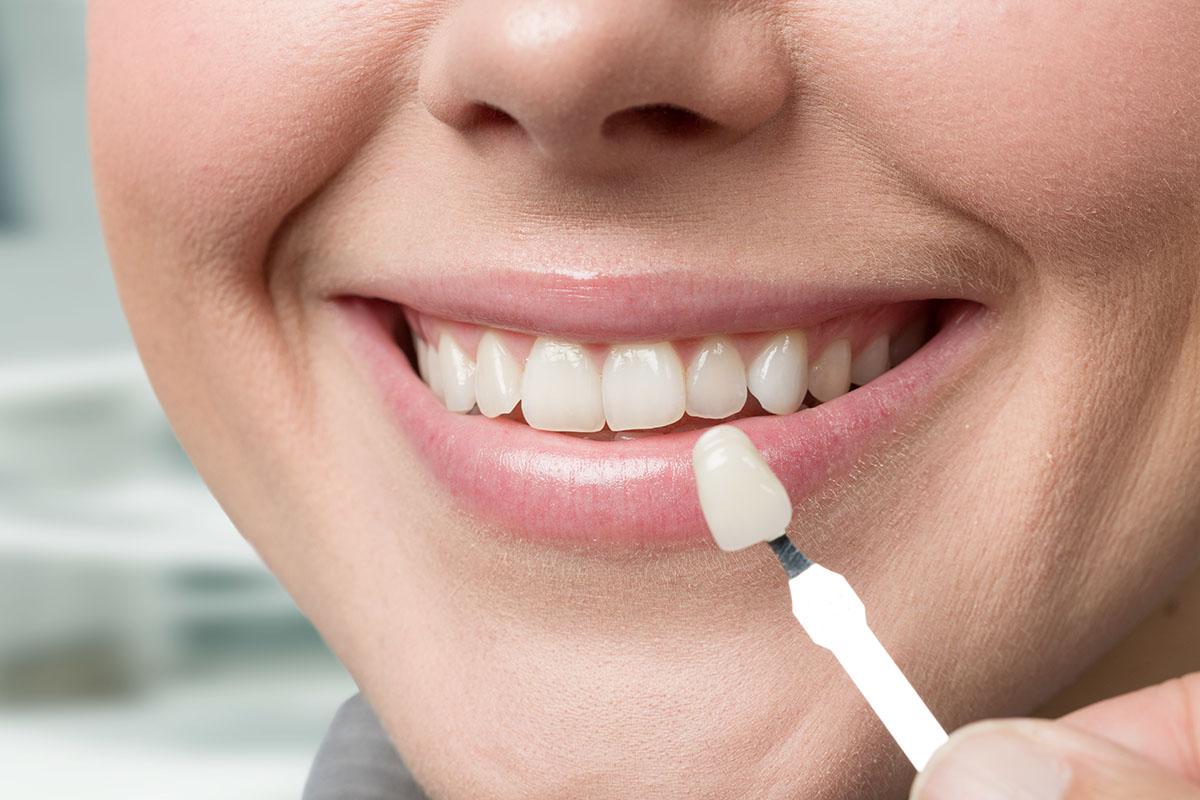 Instant Orthodontics with Porcelain Veneers - Shemen Dental Group