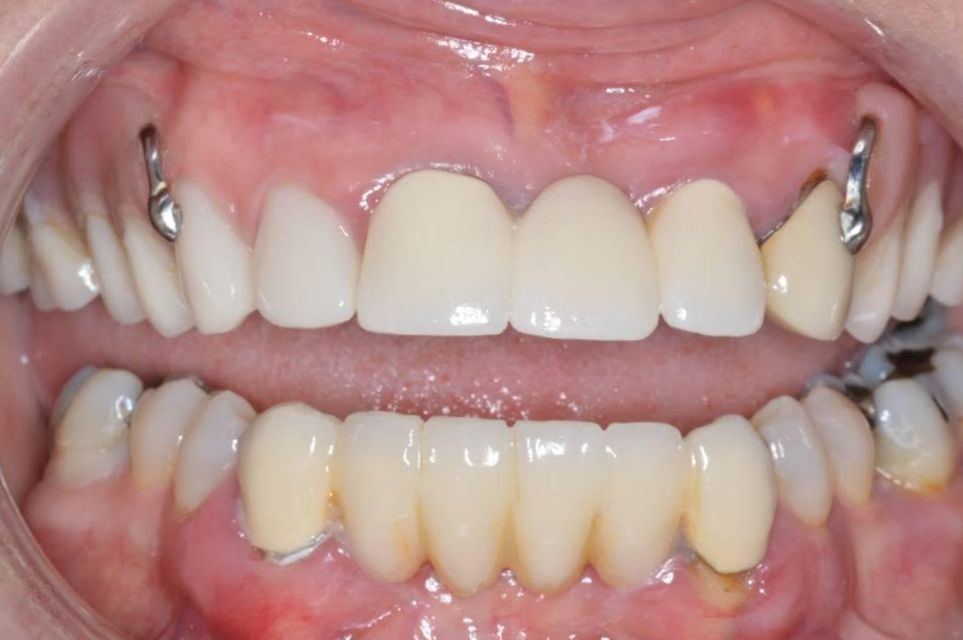 original hybrid denture before