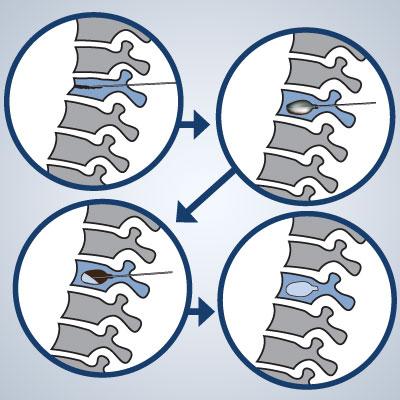 kyphoplasty