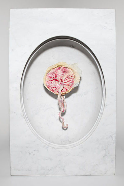 Contemporary art of marble encased plastinated placenta shows the life giving and life taking qualities of this organ.