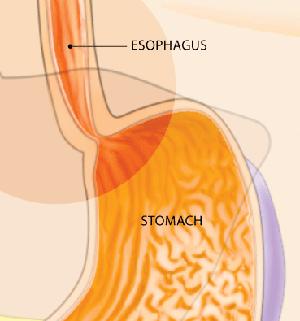 Stomach Graph
