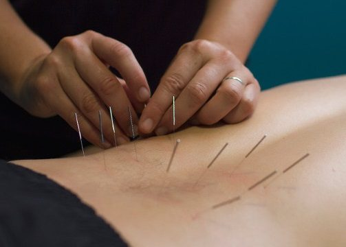 Evidence Supports Integrating Other Treatments with Dry Needling for Low Back Treatments