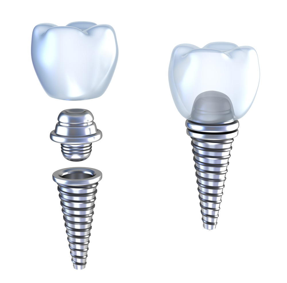 where can i get all on four implants in Stuart FL?