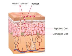 transdermal system 560