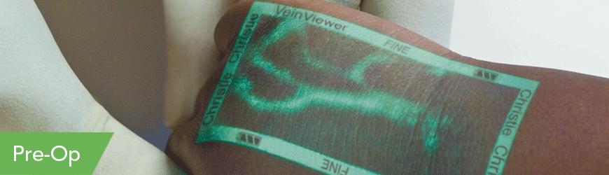 Christie VeinViewer Pre-Op