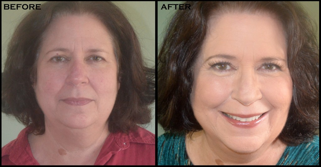mombeforeafter2