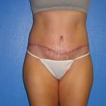 Circumferential Abdominoplasty