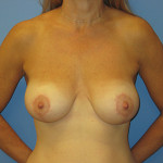 Mastopexy (breast lift) with Augmentation