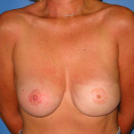 Reconstruction after Breast Cancer