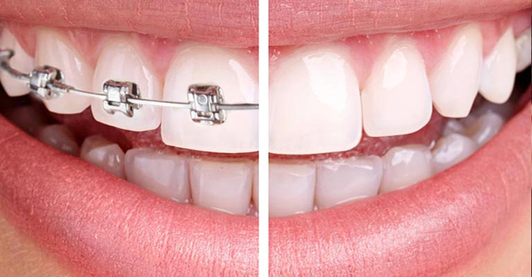 Where can I find north palm beach orthodontics?