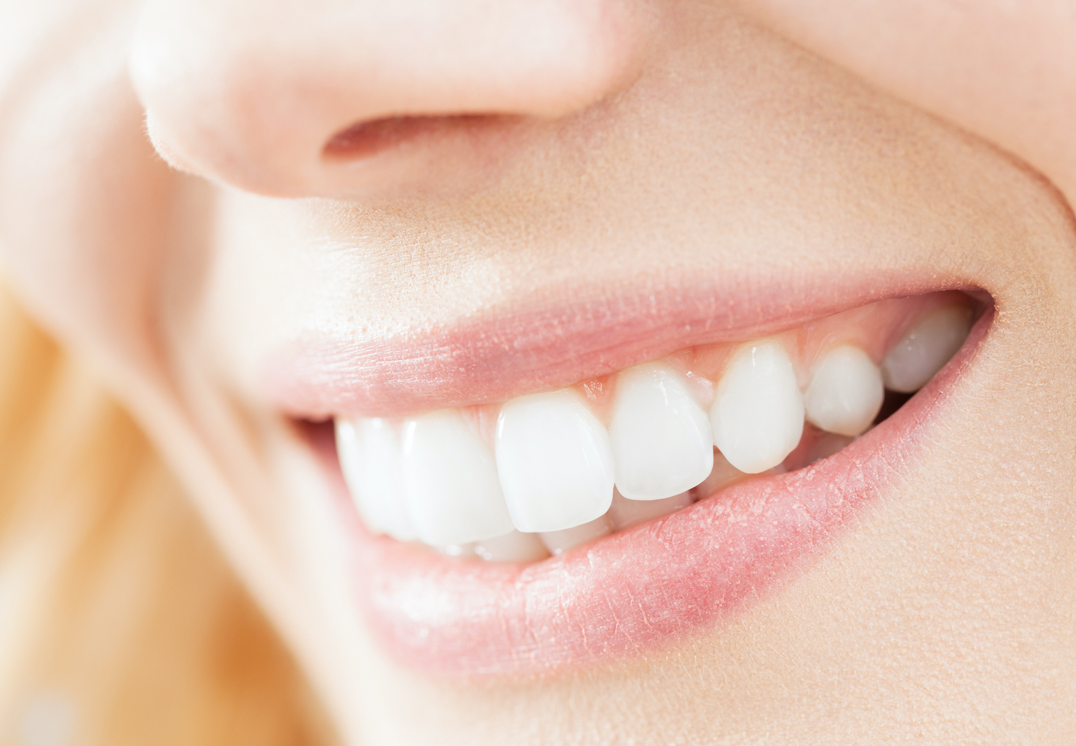 what are the benefits of teeth whitening in north palm beach
