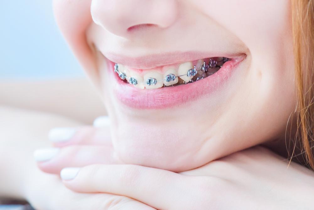 Are braces the best West Palm Beach orthodontics?