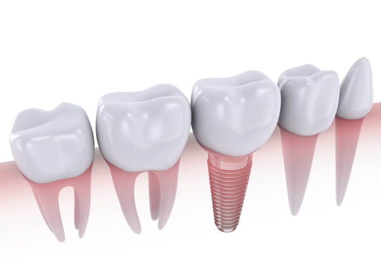 Where can I find a jupiter orthodontics?
