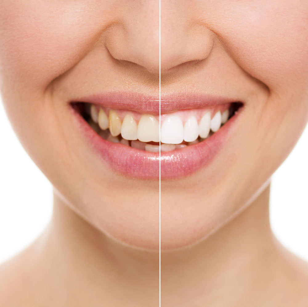 Why should I get teeth whitening in West Palm Beach?