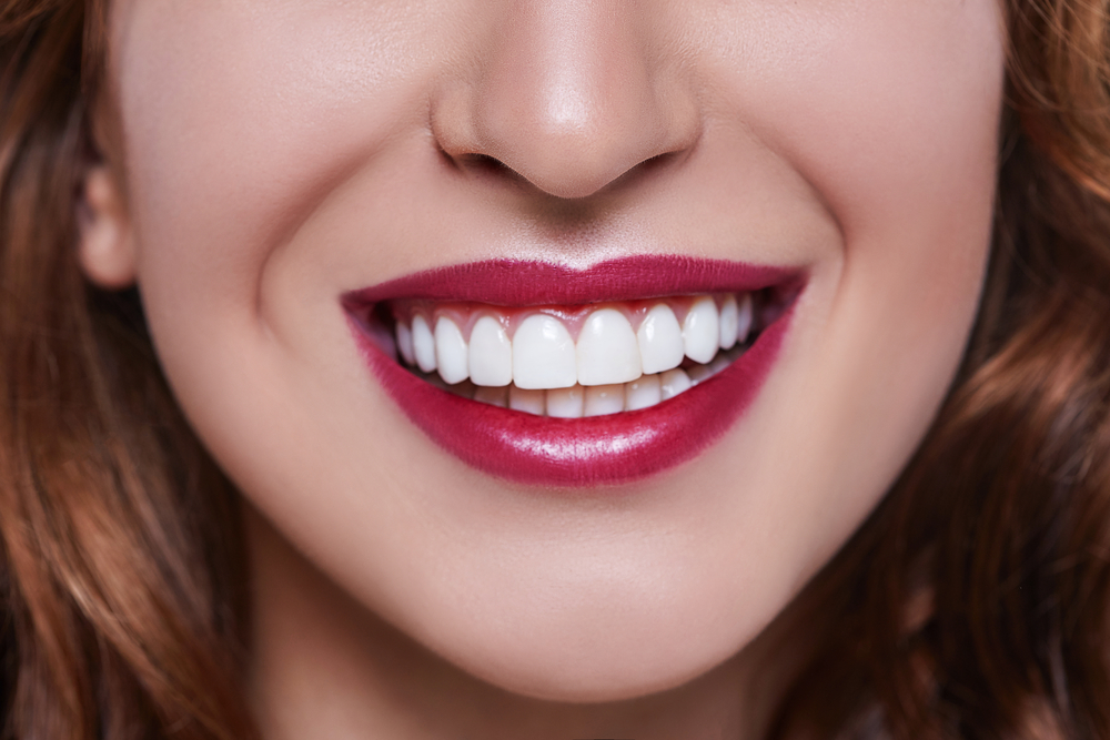 What are the benefits of teeth whitening in West Palm Beach?