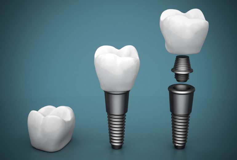 Where can I find the best dental implants north palm beach?
