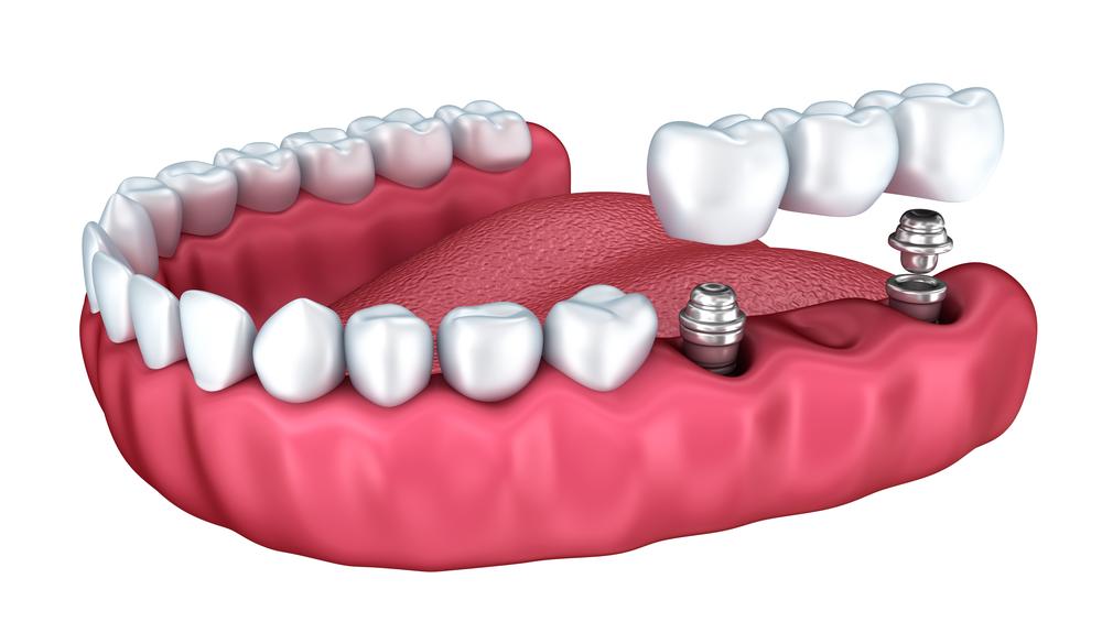 Where can I get restorative North Palm Beach dental care?