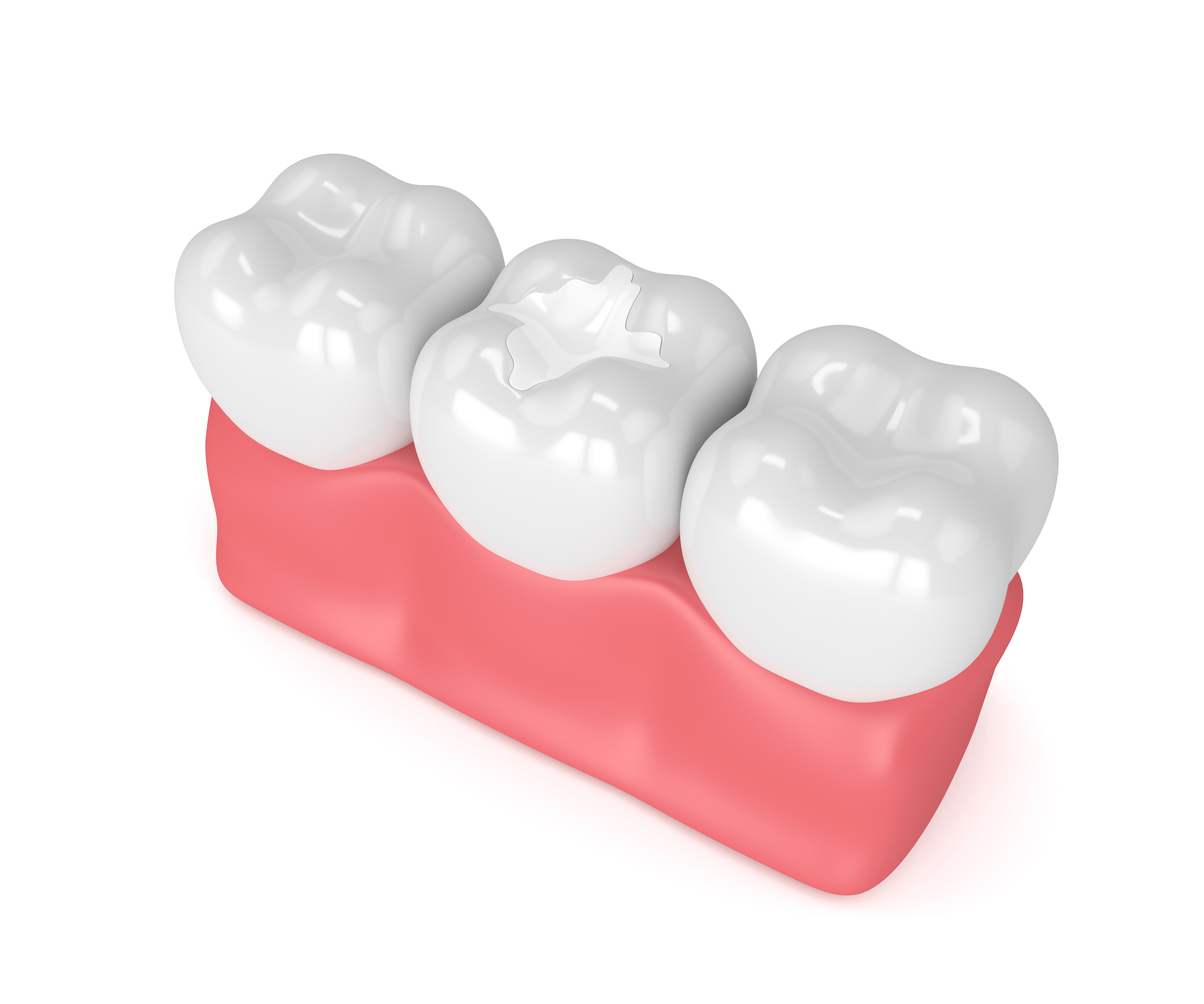 Where can I find an emergency dentist west palm beach?