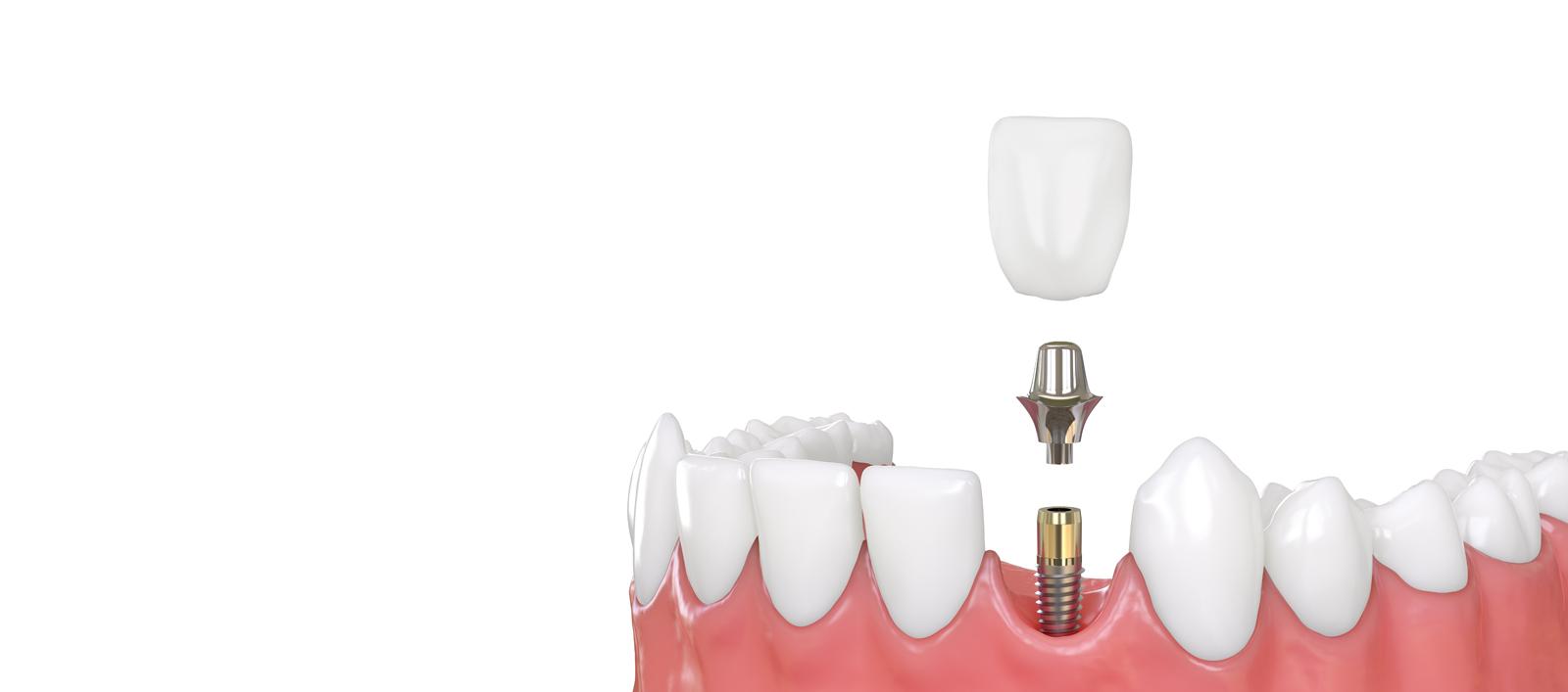 Who is the best same day dentist jupiter?