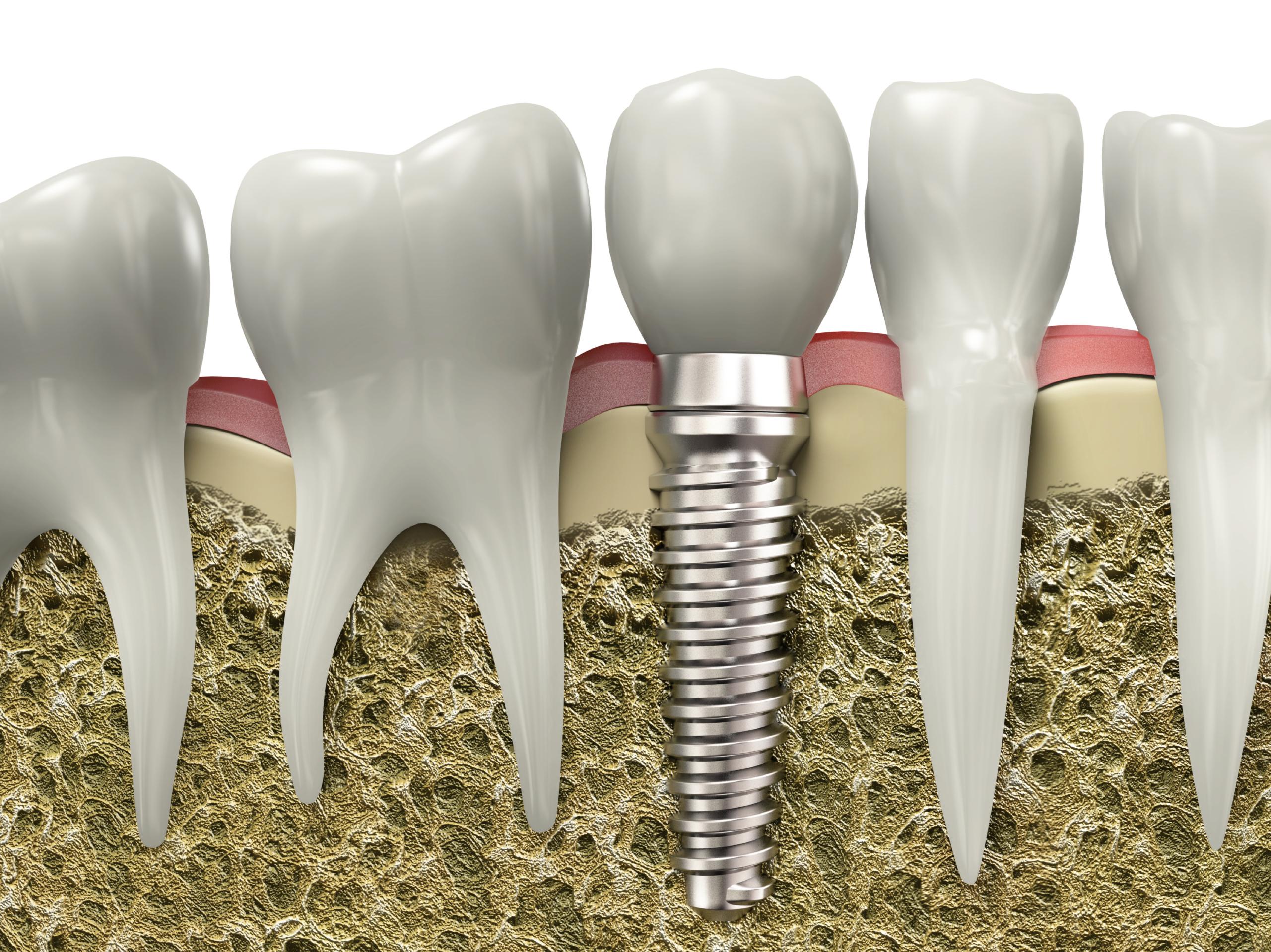 where do i go for dental implants jupiter?
