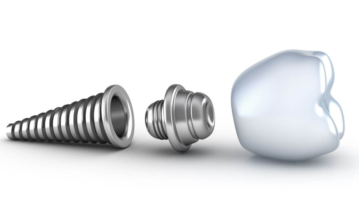 Who can give me a good dental implant Jupiter?
