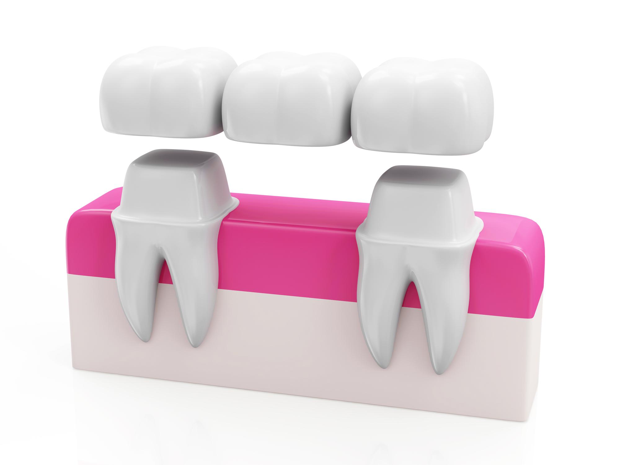 Where can I get good dental bridges Jupiter?