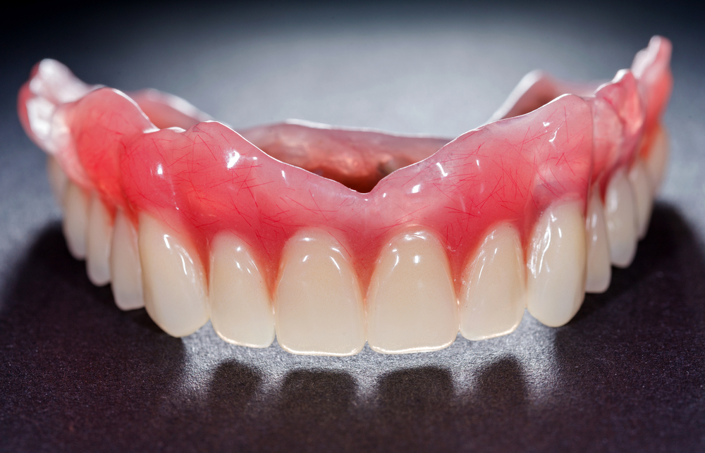 where are the best all on four implant west palm beach?