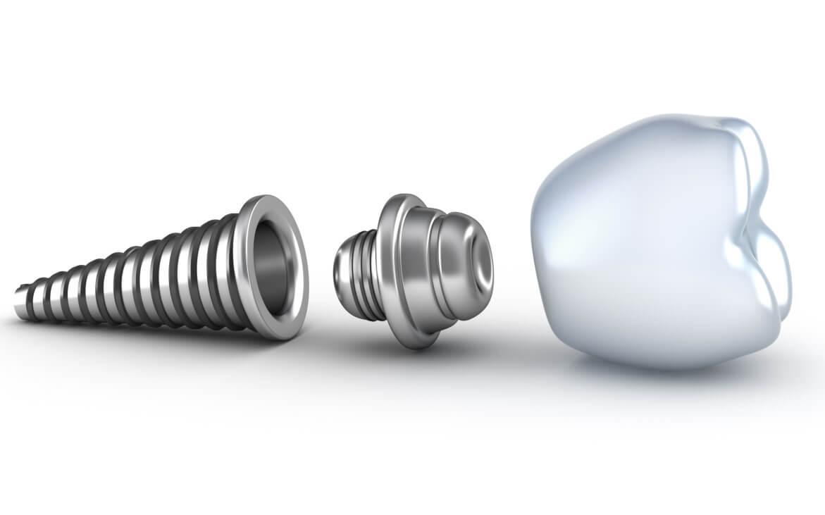 Where are good dental implants jupiter?