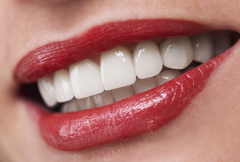 cosmetic dentist west palm beach