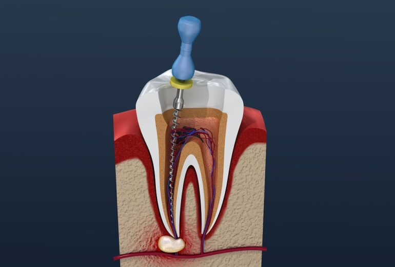 root canal jupiter