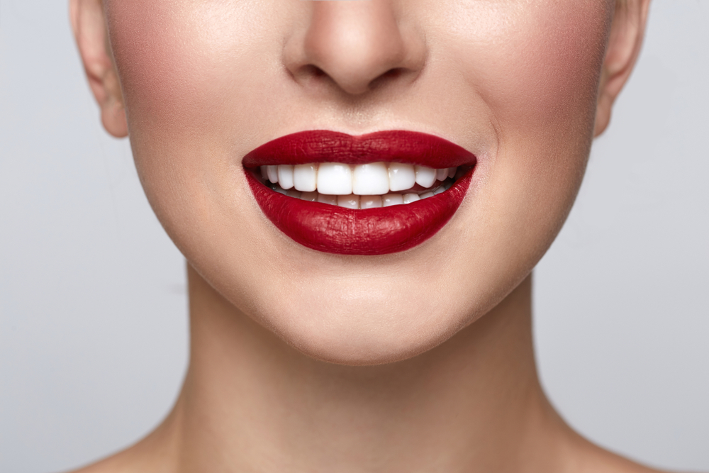 veneers west palm beach
