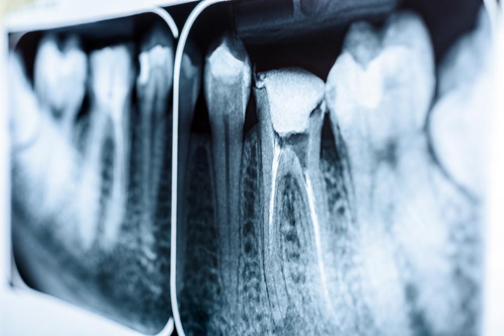 root canal jupiter