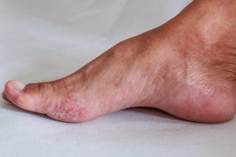 A photo of a foot with athlete's foot.