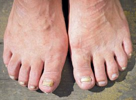 A closeup of feet with fungal toenails.