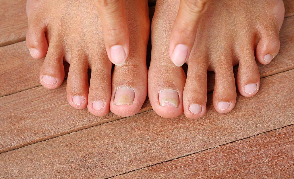 interior-fungal-toenails-1