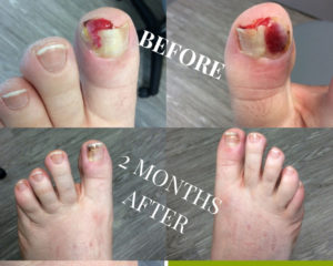 Ingrown Toenail Removal before and after