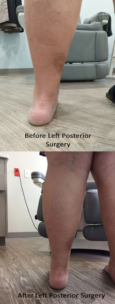 Before and After surgery of Flat foot correction
