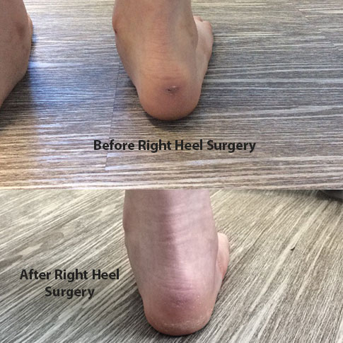 Before and After Right Heel surgery