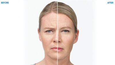 HMC - Weight Loss Center - BOTOX Cosmetic - Before and After