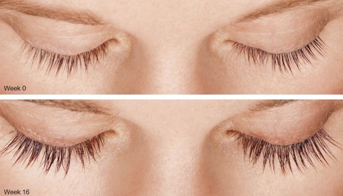 LATISSE® Eyelash Treatment - HMC Medical Weight Loss in ...