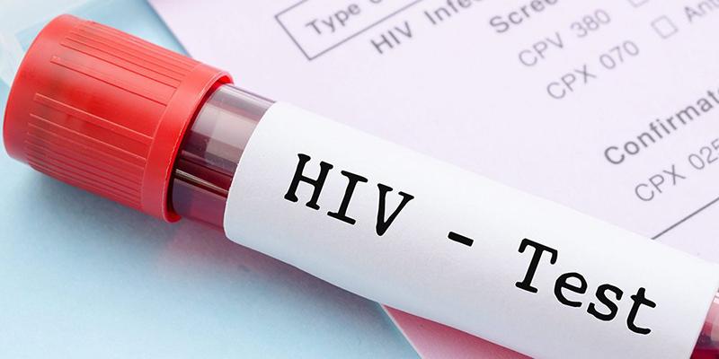 Preocupación por presunto reto viral entre jóvenes para tener sexo con VIH positivos
