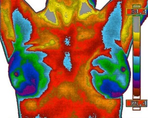 Thermobiological Risk Rating 2 Copyright The Thermogram Center