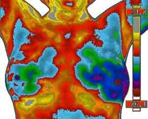 Thermobiological Risk Rating 4 Copyright The Thermogram Center